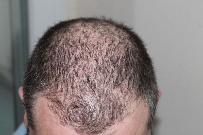 calvizie alopecia come prevenirla